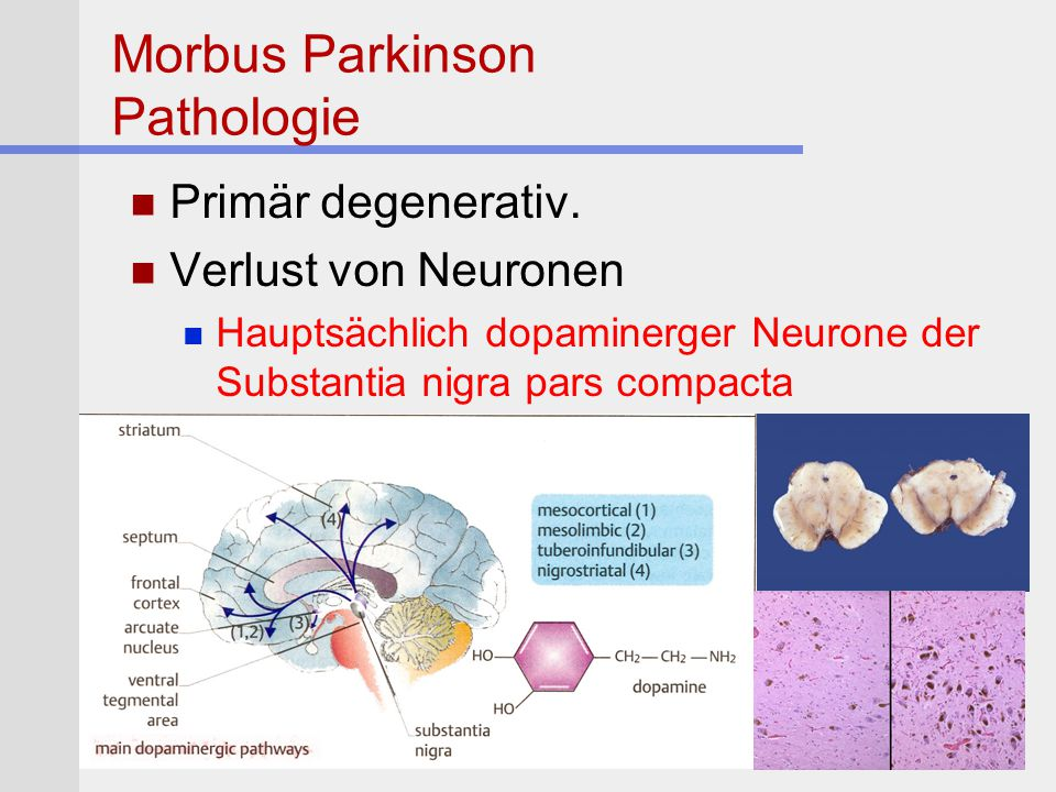 Morbus Parkinson Pathologie Primär degenerativ. Verlust von Neuronen Hauptsächlich dopaminerger Neurone der Substantia nigra pars compacta