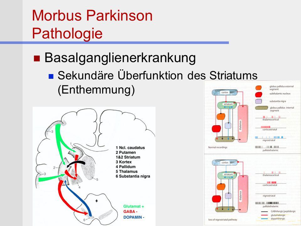 Morbus Parkinson Pathologie Basalganglienerkrankung Sekundäre Überfunktion des Striatums (Enthemmung)