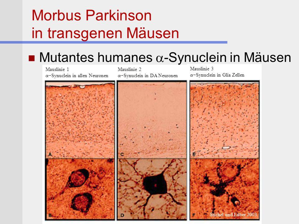 Morbus Parkinson in transgenen Mäusen Mutantes humanes  -Synuclein in Mäusen Mauslinie 1  Synuclein in allen Neuronen Mauslinie 2  Synuclein in D