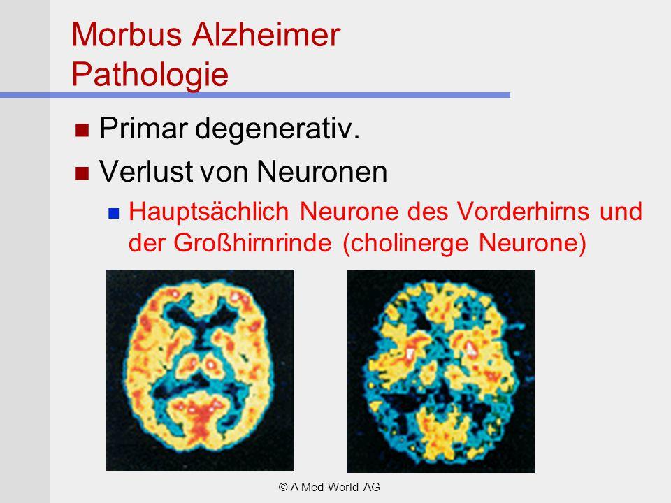Morbus Alzheimer Pathologie Primar degenerativ. Verlust von Neuronen Hauptsächlich Neurone des Vorderhirns und der Großhirnrinde (cholinerge Neurone)