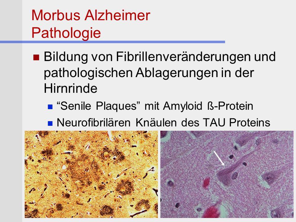 """Morbus Alzheimer Pathologie Bildung von Fibrillenveränderungen und pathologischen Ablagerungen in der Hirnrinde """"Senile Plaques"""" mit Amyloid ß-Protein"""