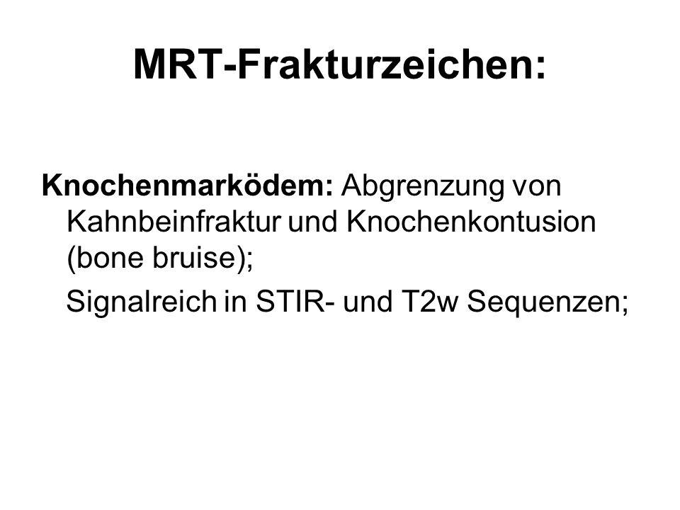 MRT-Frakturzeichen: Knochenmarködem: Abgrenzung von Kahnbeinfraktur und Knochenkontusion (bone bruise); Signalreich in STIR- und T2w Sequenzen;