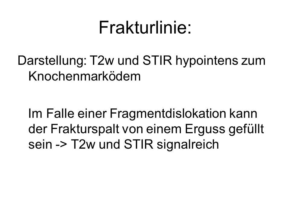 Frakturlinie: Darstellung: T2w und STIR hypointens zum Knochenmarködem Im Falle einer Fragmentdislokation kann der Frakturspalt von einem Erguss gefüllt sein -> T2w und STIR signalreich