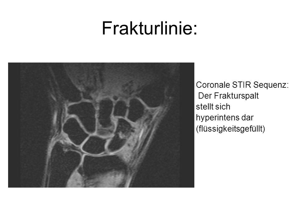 Frakturlinie: Coronale STIR Sequenz: Der Frakturspalt stellt sich hyperintens dar (flüssigkeitsgefüllt)