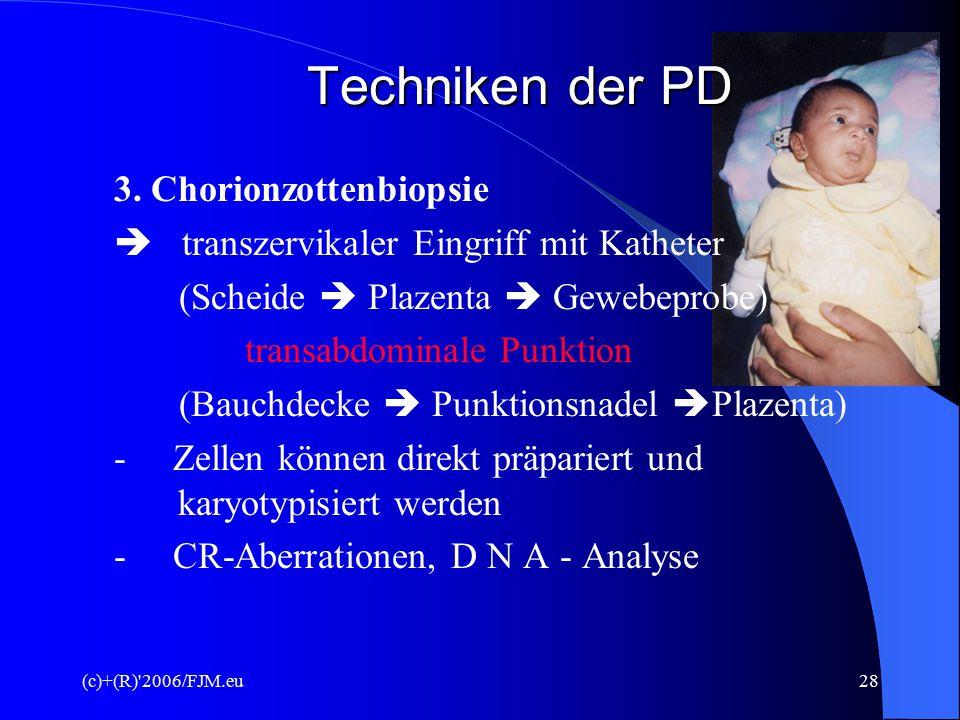 (c)+(R) 2006/FJM.eu27 Techniken der PD b) Diagnose  schwere angeborene Hautkrankheiten, wie Ichthyosen (Fischschuppenkrankheit, erbl.