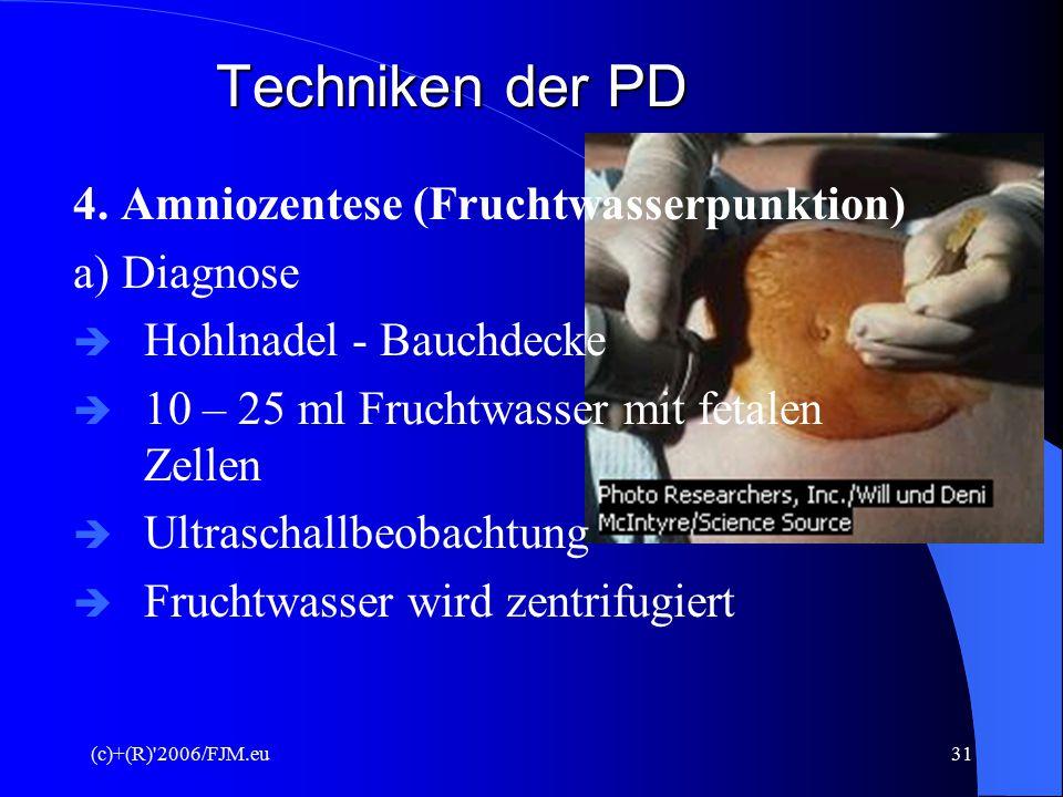 (c)+(R)'2006/FJM.eu30 Techniken der PD d) Ziele  Diagnose von versch. CR-Störungen  Neuralrohrdefekte  Erbliche Stoffwechselkrankheiten
