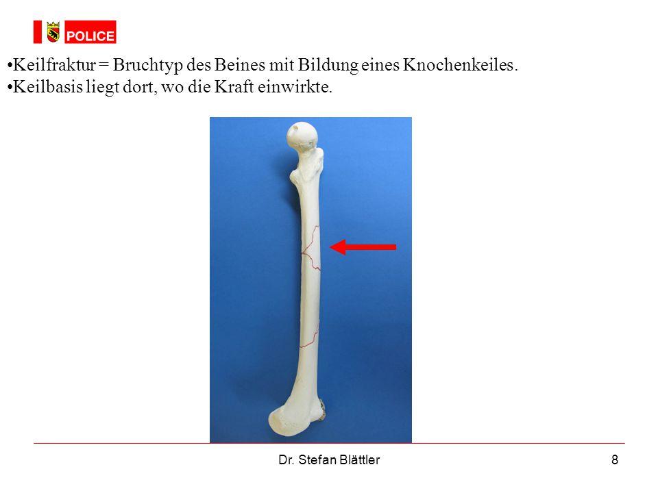 8 Keilfraktur = Bruchtyp des Beines mit Bildung eines Knochenkeiles. Keilbasis liegt dort, wo die Kraft einwirkte.