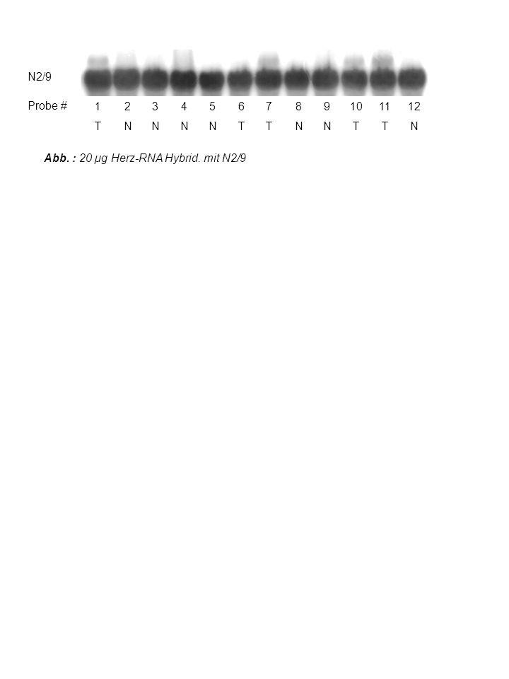Abb. : 20 µg Herz-RNA Hybrid.