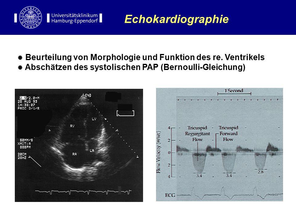  Beurteilung von Morphologie und Funktion des re. Ventrikels  Abschätzen des systolischen PAP (Bernoulli-Gleichung) Echokardiographie