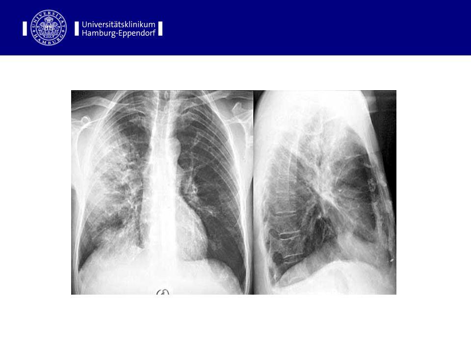 Leitsymptome der Pneumonie Fieber Husten und Auswurf Dyspnoe Thoraxschmerz