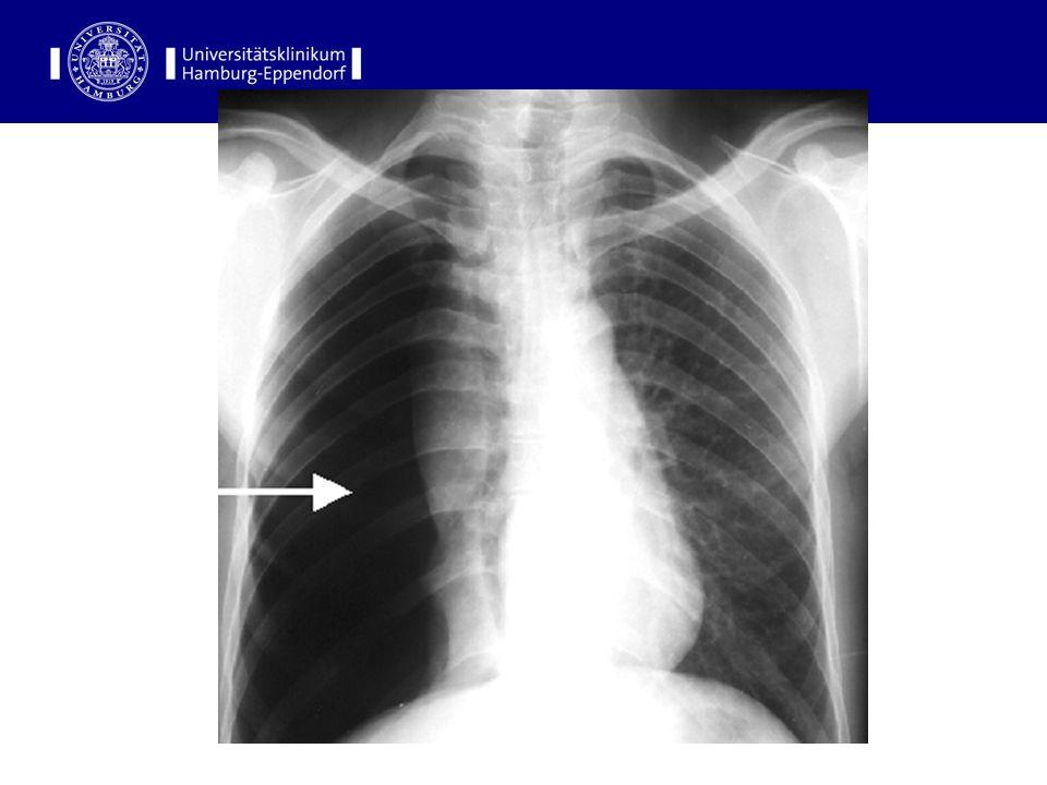 Definitionen Pneumothorax: Luft im Pleuraspalt Hydrothorax (Pleuraerguss): Flüssigkeit im Pleuraspalt Hämatothorax: Blut im Pleuraspalt Chylothorax: Lymphe im Pleuraspalt