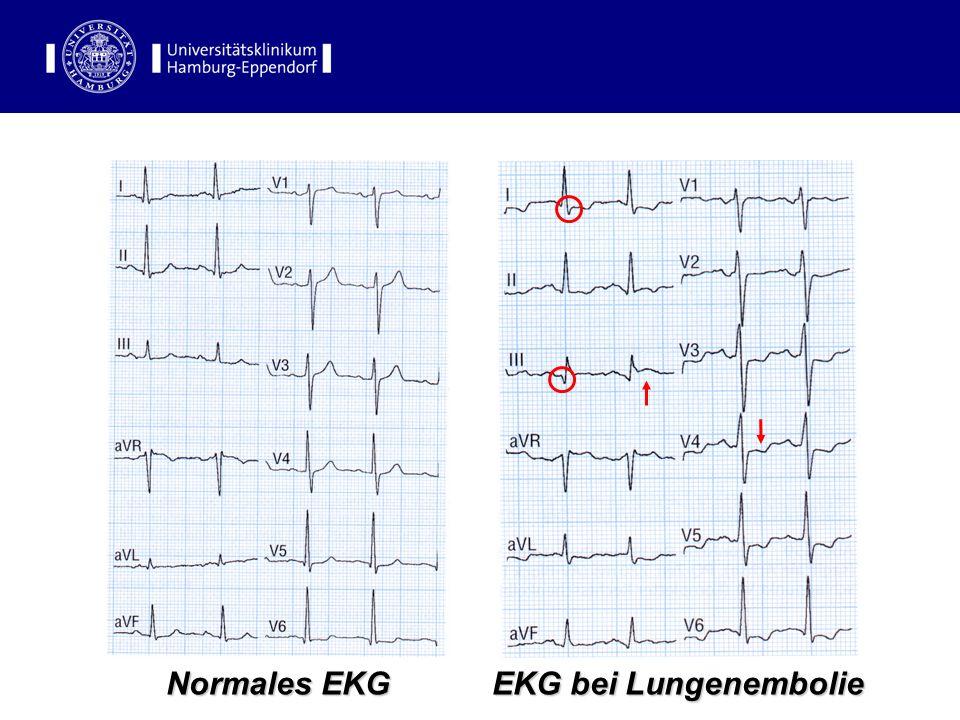 EKG bei Lungenembolie EKG bei Lungenembolie Normales EKG EKG-Befunde