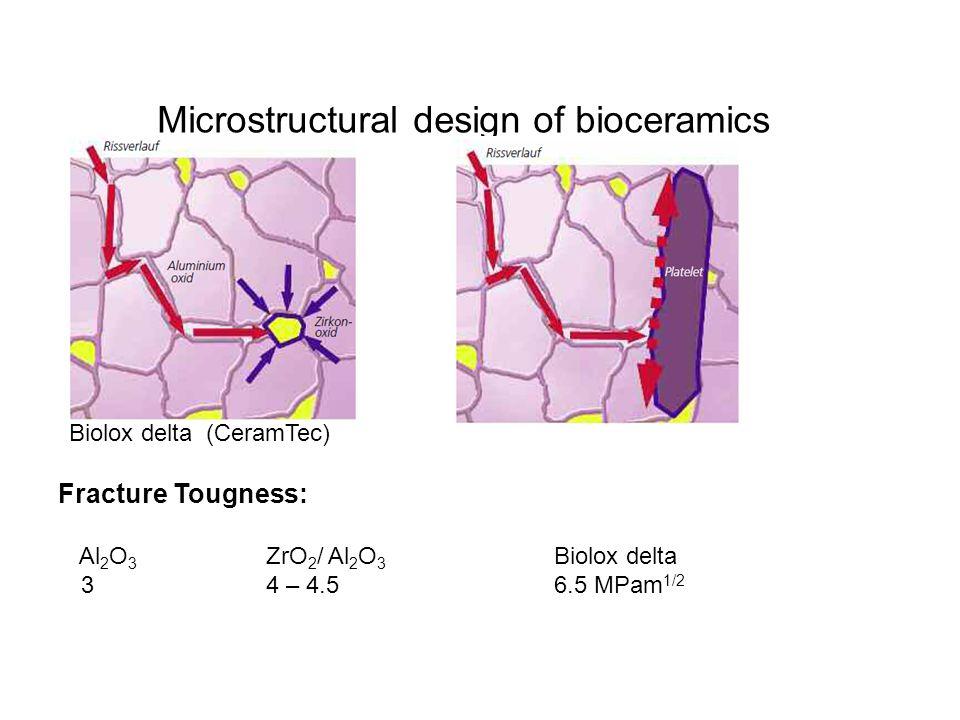 Microstructural design of bioceramics Biolox delta (CeramTec) Fracture Tougness: Al 2 O 3 ZrO 2 / Al 2 O 3 Biolox delta 34 – 4.56.5 MPam 1/2