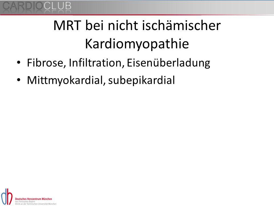 MRT bei nicht ischämischer Kardiomyopathie Fibrose, Infiltration, Eisenüberladung Mittmyokardial, subepikardial