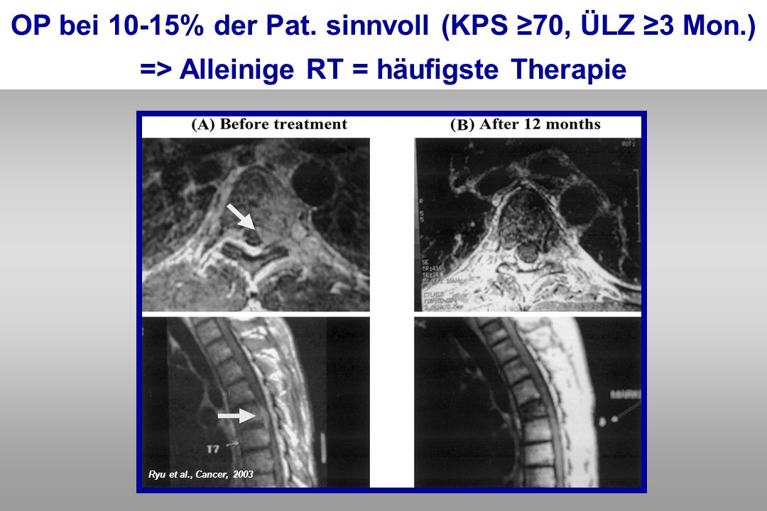 Ryu et al., Cancer, 2003 OP bei 10-15% der Pat. sinnvoll (KPS ≥70, ÜLZ ≥3 Mon.) => Alleinige RT = häufigste Therapie