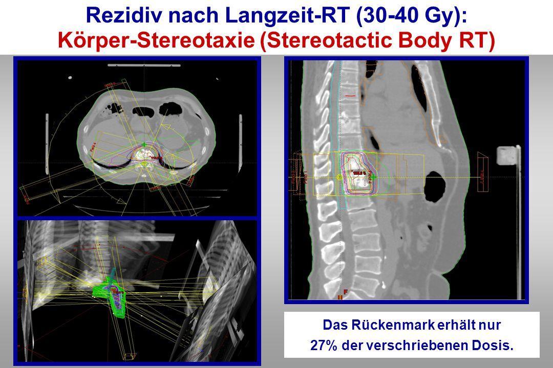 Das Rückenmark erhält nur 27% der verschriebenen Dosis. Rezidiv nach Langzeit-RT (30-40 Gy): Körper-Stereotaxie (Stereotactic Body RT)