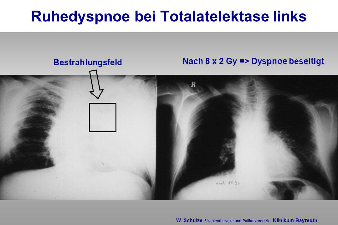 W. Schulze Strahlentherapie und Palliativmedizin Klinikum Bayreuth Ruhedyspnoe bei Totalatelektase links Bestrahlungsfeld Nach 8 x 2 Gy => Dyspnoe bes