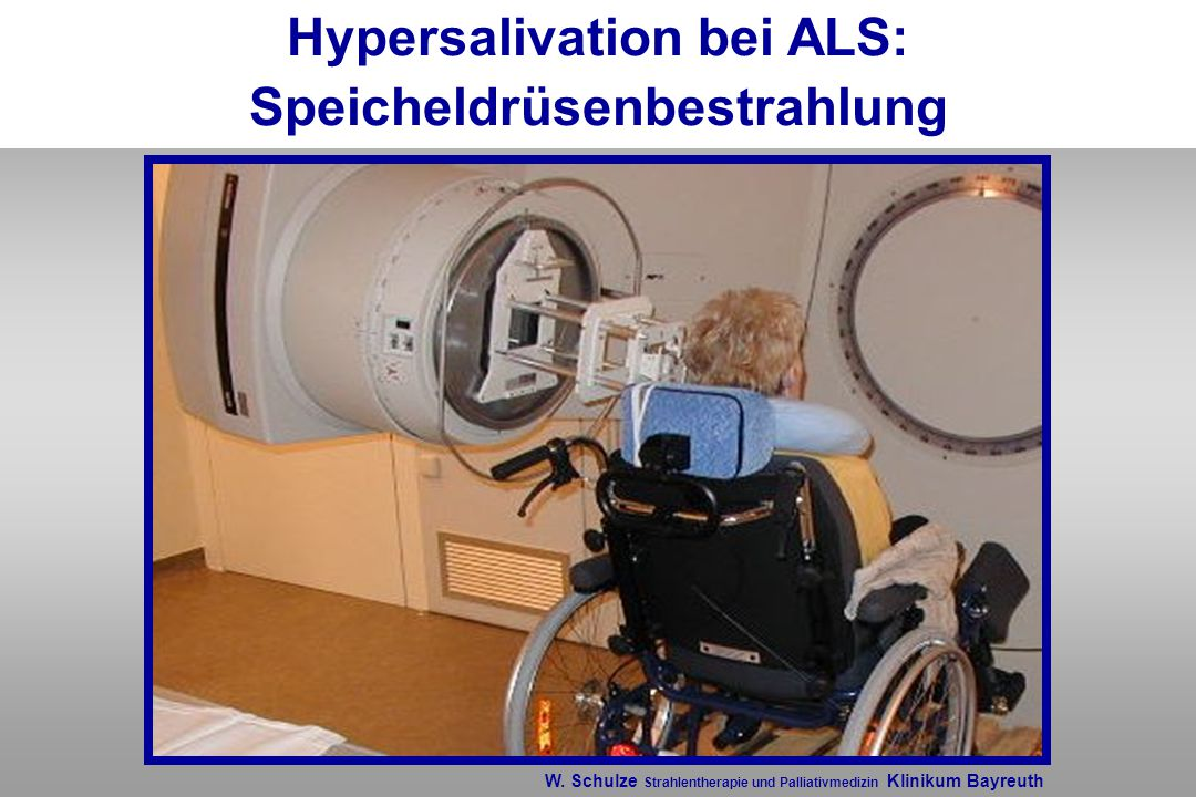 Hypersalivation bei ALS: Speicheldrüsenbestrahlung W. Schulze Strahlentherapie und Palliativmedizin Klinikum Bayreuth