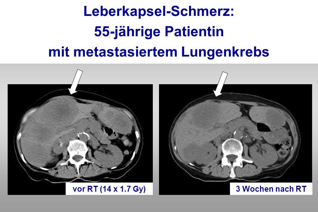 Leberkapsel-Schmerz: 55-jährige Patientin mit metastasiertem Lungenkrebs 3 Wochen nach RTvor RT (14 x 1.7 Gy)