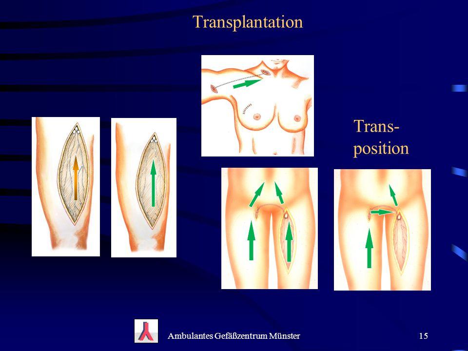 Ambulantes Gefäßzentrum Münster15 Transplantation Trans- position