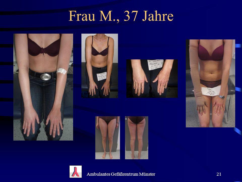 Frau M., 37 Jahre Ambulantes Gefäßzentrum Münster21