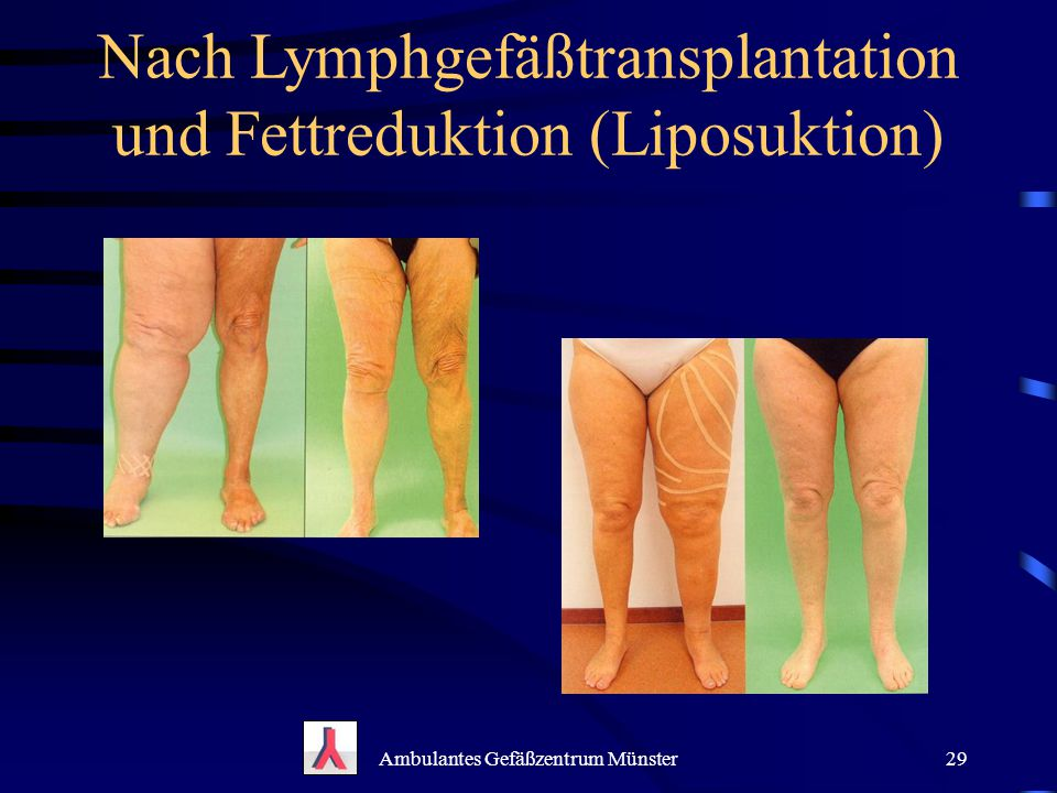 Ambulantes Gefäßzentrum Münster29 Nach Lymphgefäßtransplantation und Fettreduktion (Liposuktion)