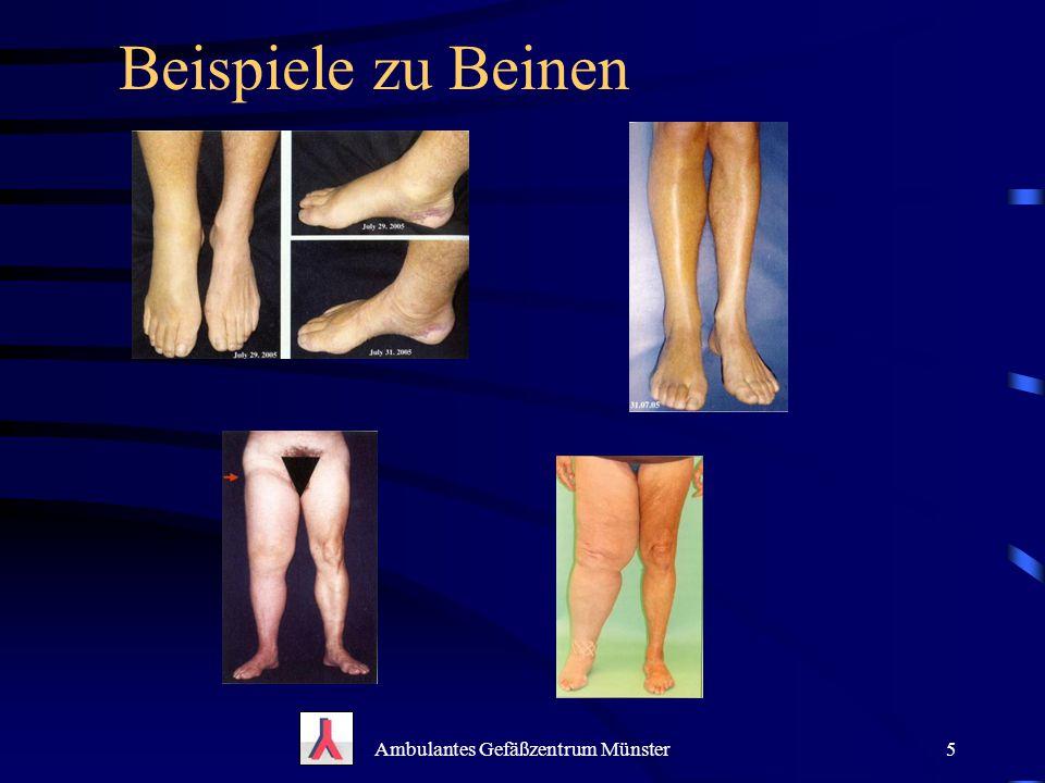 Beispiele zu Beinen Ambulantes Gefäßzentrum Münster5