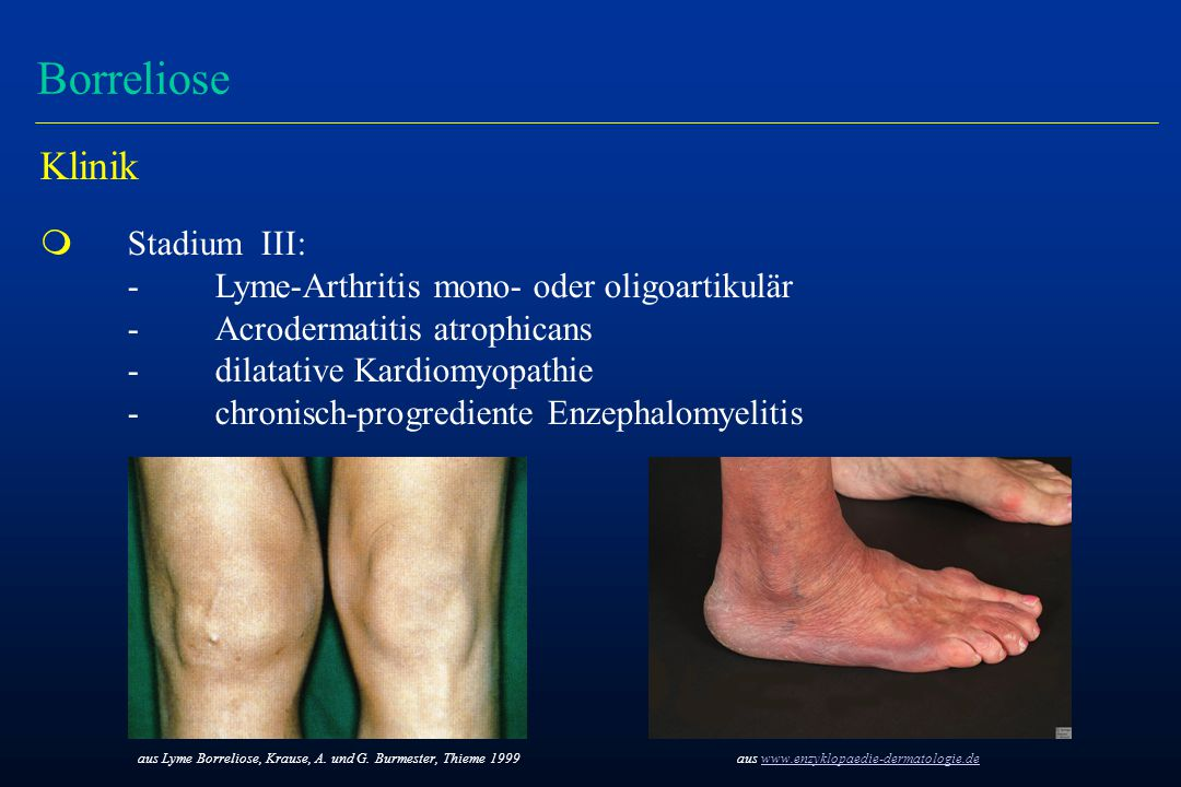 Borreliose Klinik m Stadium III: -Lyme-Arthritis mono- oder oligoartikulär -Acrodermatitis atrophicans - dilatative Kardiomyopathie - chronisch-progre