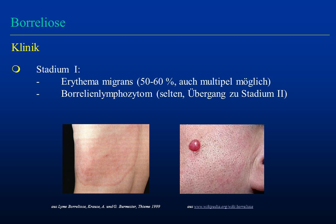 Borreliose Klinik m Stadium I: -Erythema migrans (50-60 %, auch multipel möglich) -Borrelienlymphozytom (selten, Übergang zu Stadium II) aus Lyme Borr