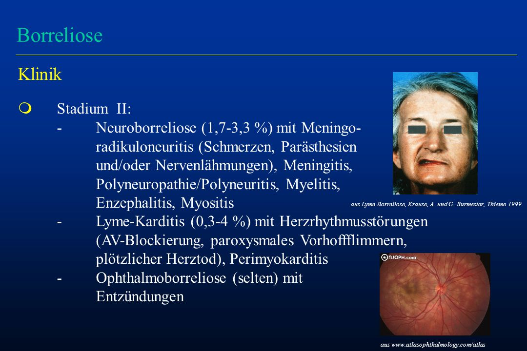 Borreliose Klinik m Stadium II: -Neuroborreliose (1,7-3,3 %) mit Meningo- radikuloneuritis (Schmerzen, Parästhesien und/oder Nervenlähmungen), Meningitis, Polyneuropathie/Polyneuritis, Myelitis, Enzephalitis, Myositis -Lyme-Karditis (0,3-4 %) mit Herzrhythmusstörungen (AV-Blockierung, paroxysmales Vorhoffflimmern, plötzlicher Herztod), Perimyokarditis -Ophthalmoborreliose (selten) mit Entzündungen aus Lyme Borreliose, Krause, A.