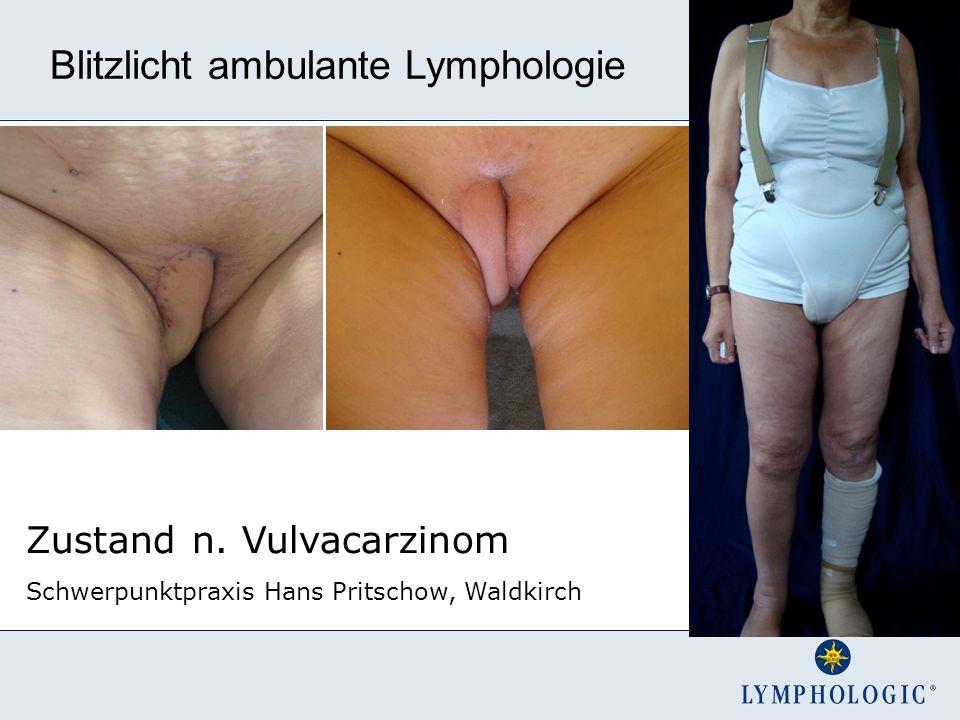 Zustand n. Vulvacarzinom Schwerpunktpraxis Hans Pritschow, Waldkirch Blitzlicht ambulante Lymphologie