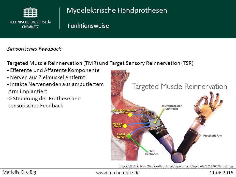 Myoelektrische Handprothesen www.tu-chemnitz.de11.06.2015 Mariella Dreißig Sensorisches Feedback Targeted Muscle Reinnervation (TMR) und Target Sensor