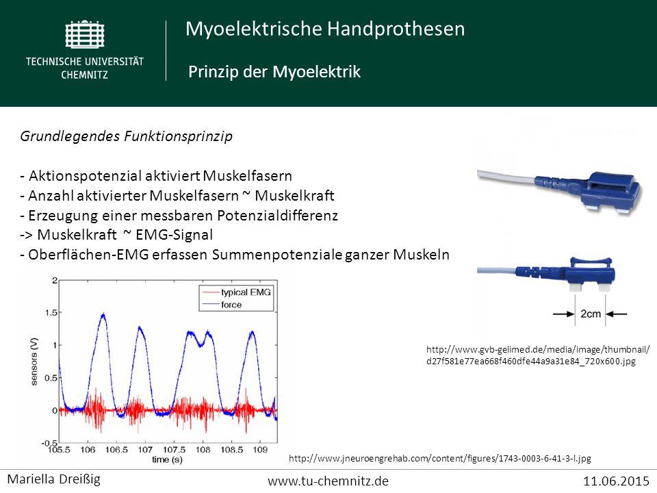 Myoelektrische Handprothesen www.tu-chemnitz.de11.06.2015 Mariella Dreißig Beispiel: Fluidhand (2000 vom BioRobotLab im Karlsruher Institut für Technologie (KIT) entwickelt) - Steuerung erfolgt myoelektrisch (2 EMG Elektroden) - Neu: flexible Fluidaktoren - Kammer aus dünner Plastikfolie - Befüllen mit Flüssigkeit = Expansion - Ablassen der Flüssigkeit = Kontraktion - speziell angfertigte Zahnradpumpen und Ventile Beispiel: Fluidhand