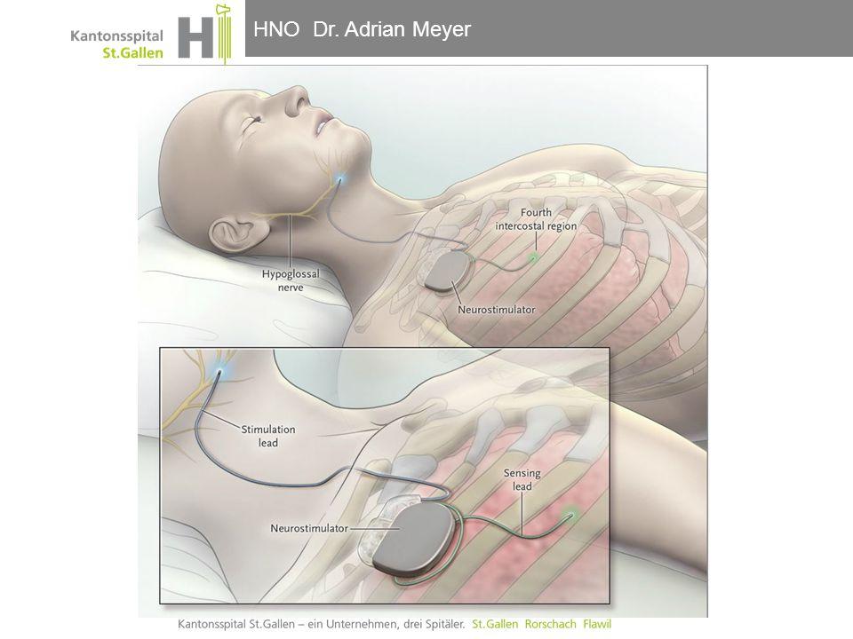 HNO-Klinik, Hals- und GesichtschirurgieHNO Dr. Adrian Meyer