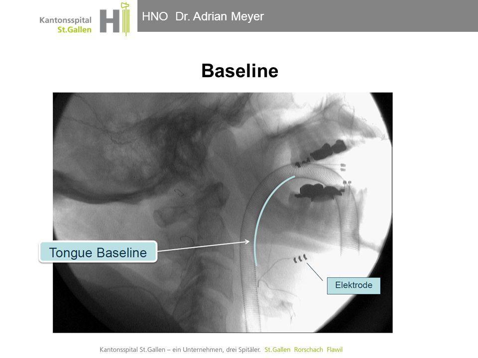 HNO-Klinik, Hals- und GesichtschirurgieHNO Dr. Adrian Meyer Baseline