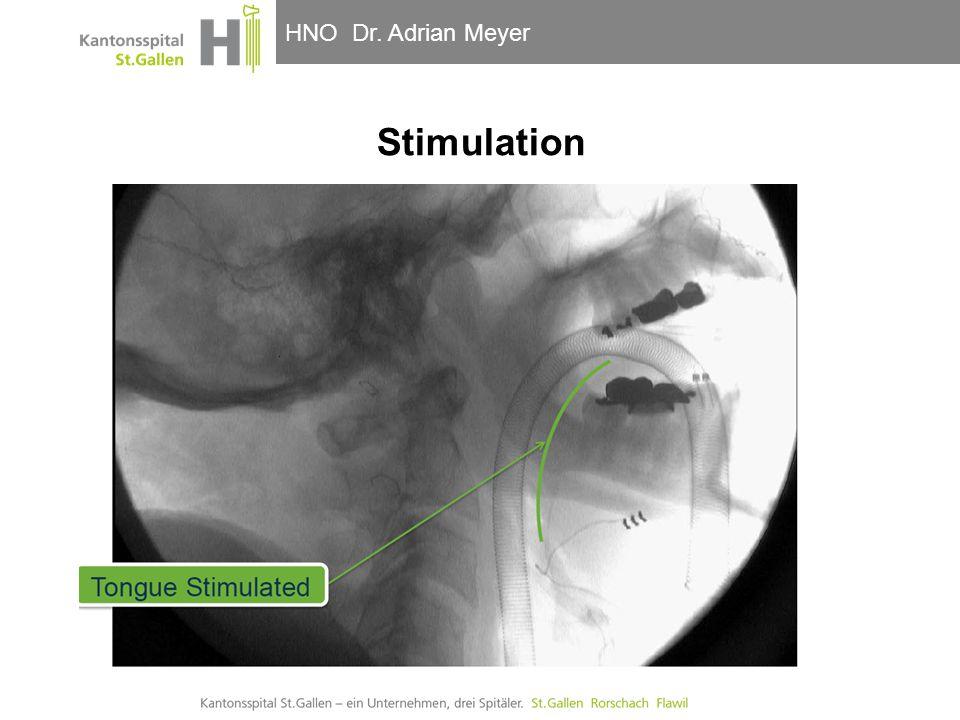 HNO-Klinik, Hals- und GesichtschirurgieHNO Dr. Adrian Meyer Stimulation