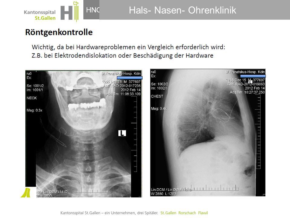HNO-Klinik, Hals- und GesichtschirurgieHNO Dr. Adrian Meyer Hals- Nasen- Ohrenklinik