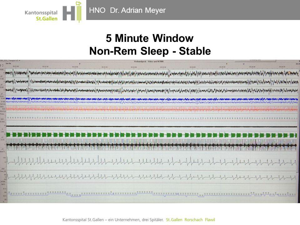 HNO-Klinik, Hals- und GesichtschirurgieHNO Dr. Adrian Meyer 5 Minute Window Non-Rem Sleep - Stable
