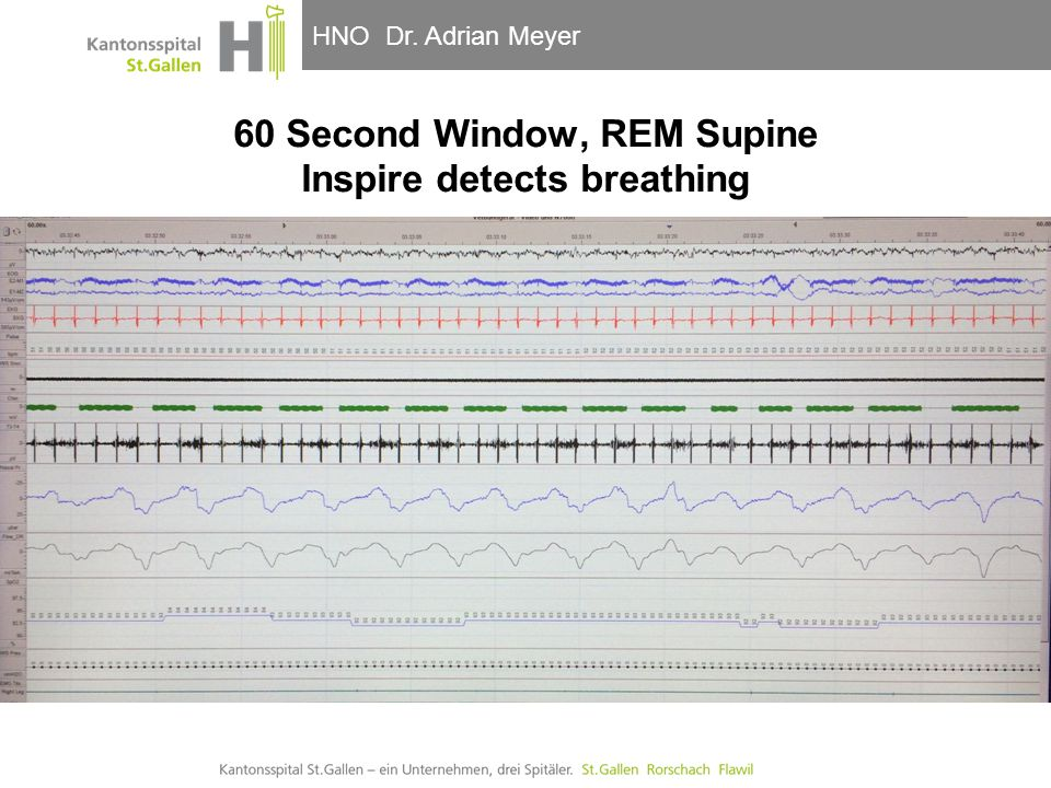 HNO-Klinik, Hals- und GesichtschirurgieHNO Dr. Adrian Meyer 60 Second Window, REM Supine Inspire detects breathing