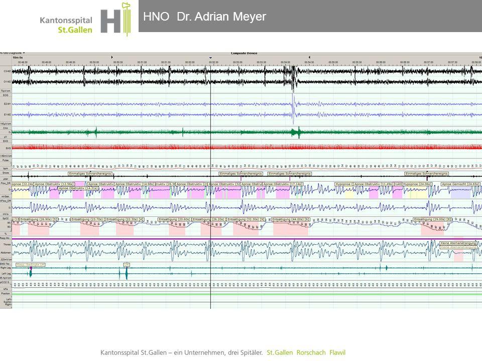 HNO-Klinik, Hals- und GesichtschirurgieHNO Dr. Adrian Meyer  Fallbericht:  PSG ohne CPAP