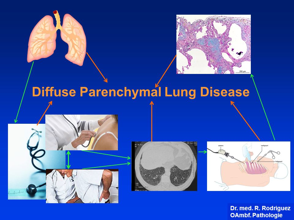 Diffuse Parenchymal Lung Disease Dr. med. R. Rodriguez OAmbf. Pathologie