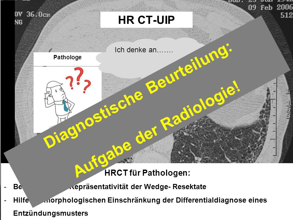 HR CT-UIP HRCT für Pathologen: -Beurteilung der Repräsentativität der Wedge- Resektate -Hilfe zur morphologischen Einschränkung der Differentialdiagnose eines Entzündungsmusters Pathologe Ich denke an…….
