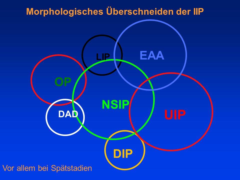 NSIP UIP EAA LIP OP DAD DIP Vor allem bei Spätstadien Morphologisches Überschneiden der IIP