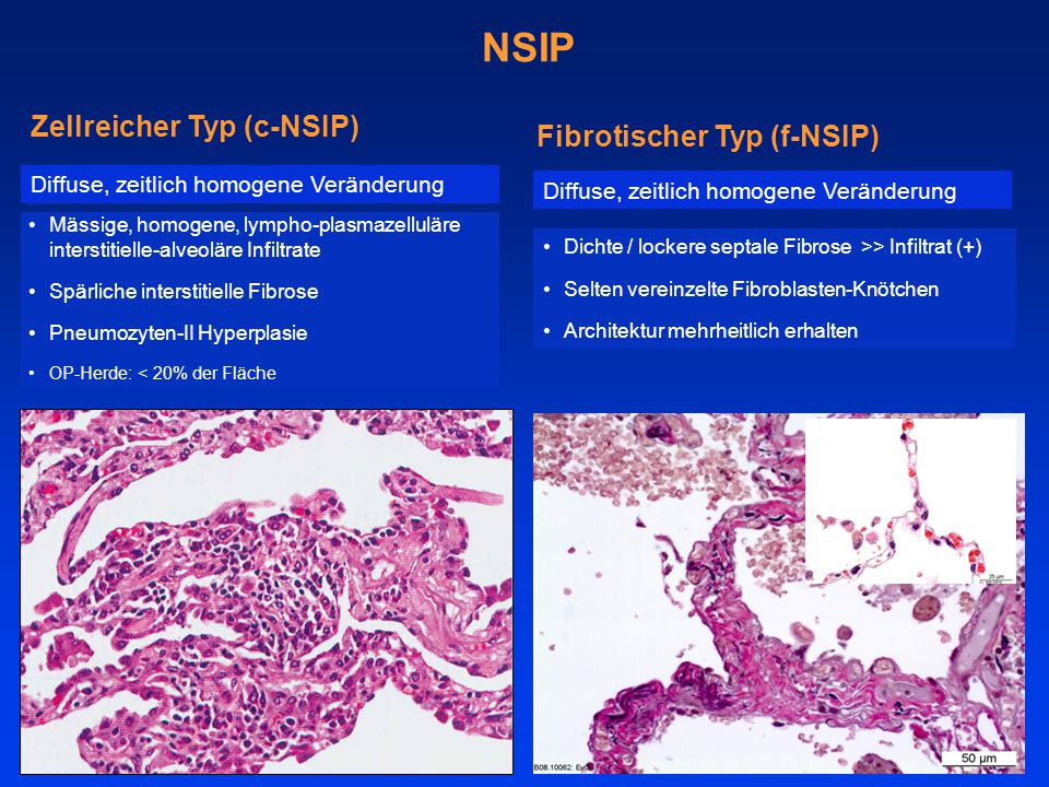 NSIP Zellreicher Typ (c-NSIP) Mässige, homogene, lympho-plasmazelluläre interstitielle-alveoläre Infiltrate Spärliche interstitielle Fibrose Pneumozyten-II Hyperplasie OP-Herde: < 20% der Fläche Diffuse, zeitlich homogene Veränderung Fibrotischer Typ (f-NSIP) Dichte / lockere septale Fibrose >> Infiltrat (+) Selten vereinzelte Fibroblasten-Knötchen Architektur mehrheitlich erhalten Diffuse, zeitlich homogene Veränderung