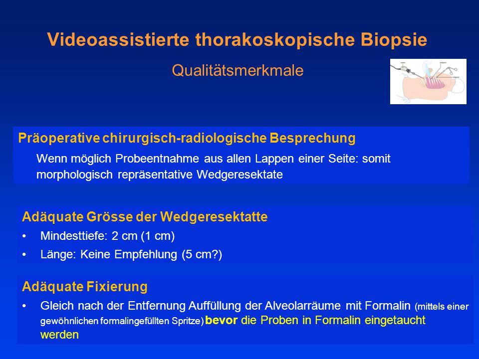 Videoassistierte thorakoskopische Biopsie Qualitätsmerkmale Präoperative chirurgisch-radiologische Besprechung Wenn möglich Probeentnahme aus allen Lappen einer Seite: somit morphologisch repräsentative Wedgeresektate Adäquate Grösse der Wedgeresektatte Mindesttiefe: 2 cm (1 cm) Länge: Keine Empfehlung (5 cm?) Adäquate Fixierung Gleich nach der Entfernung Auffüllung der Alveolarräume mit Formalin (mittels einer gewöhnlichen formalingefüllten Spritze) bevor die Proben in Formalin eingetaucht werden