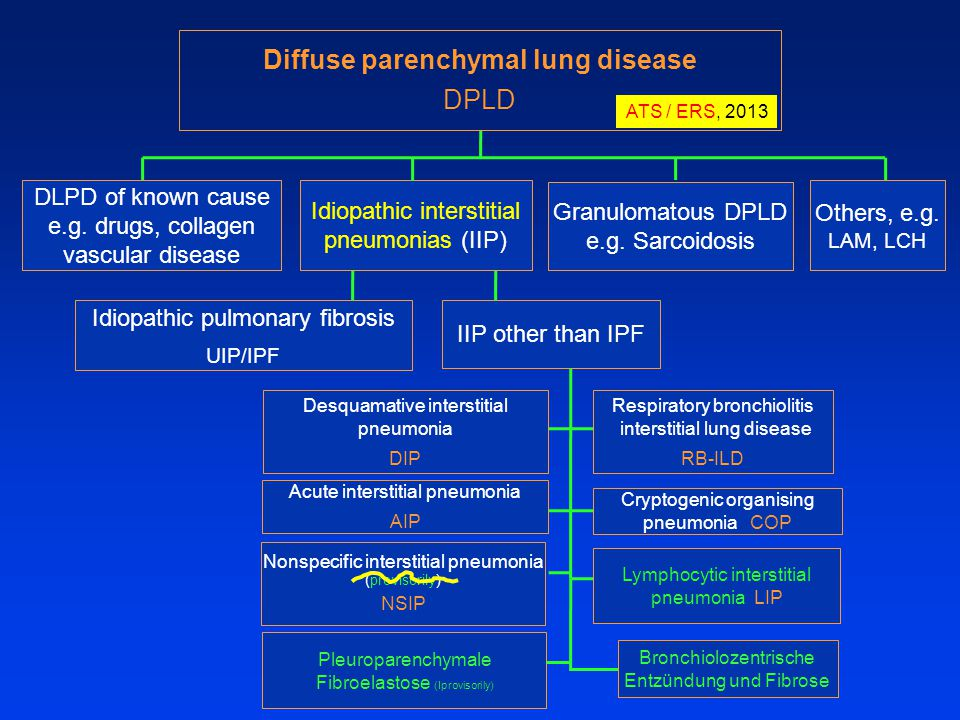 DLPD of known cause e.g. drugs, collagen vascular disease Idiopathic interstitial pneumonias (IIP) Granulomatous DPLD e.g. Sarcoidosis Others, e.g. LA