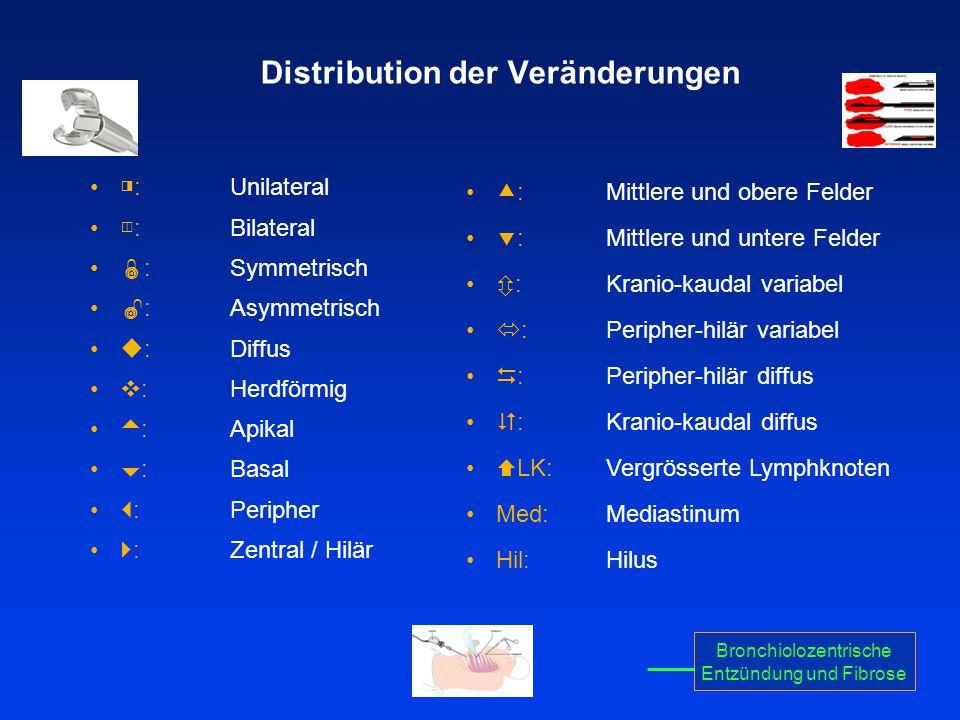Distribution der Veränderungen ◨ : Unilateral ◫ : Bilateral  : Symmetrisch  : Asymmetrisch  : Diffus  : Herdförmig  : Apikal  : Basal  : Periph