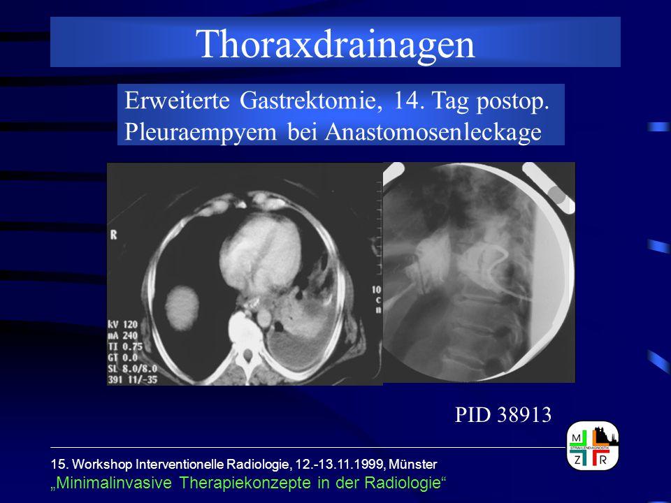 """15. Workshop Interventionelle Radiologie, 12.-13.11.1999, Münster """"Minimalinvasive Therapiekonzepte in der Radiologie"""" Thoraxdrainagen Erweiterte Gast"""