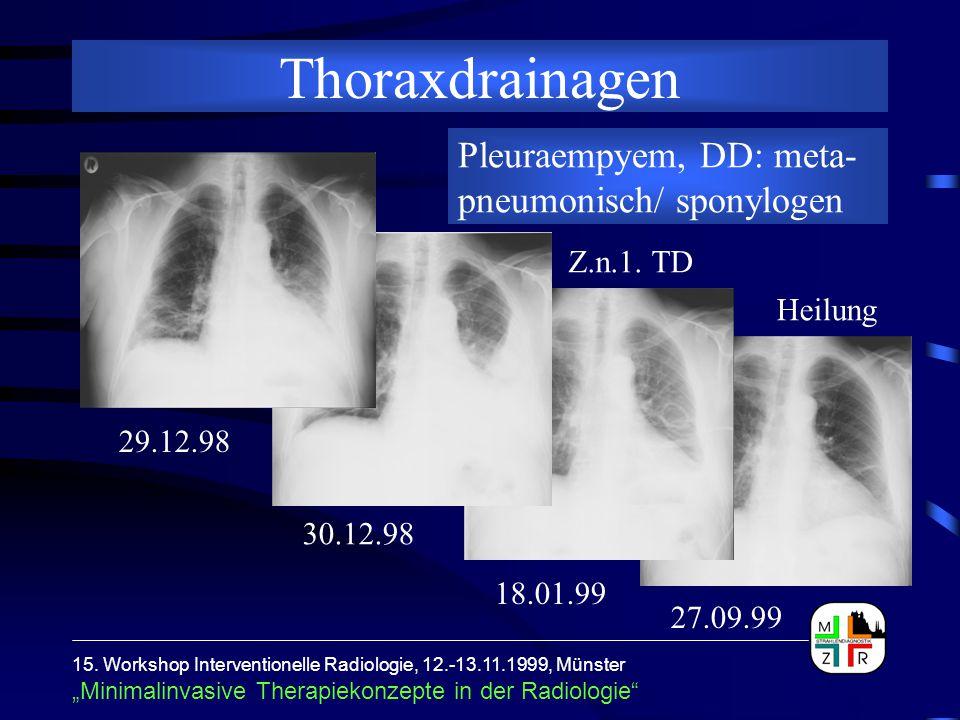 """15. Workshop Interventionelle Radiologie, 12.-13.11.1999, Münster """"Minimalinvasive Therapiekonzepte in der Radiologie"""" Thoraxdrainagen Pleuraempyem, D"""