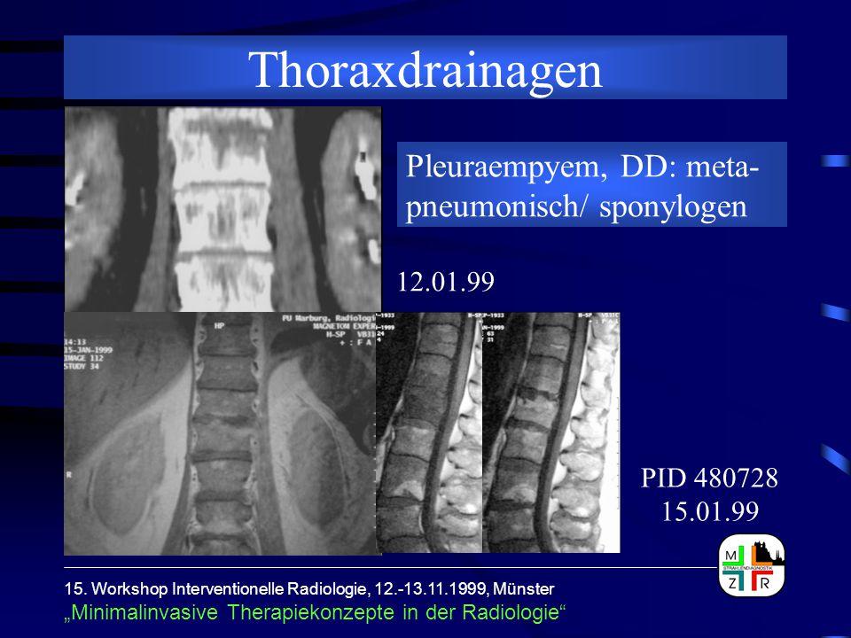 """15. Workshop Interventionelle Radiologie, 12.-13.11.1999, Münster """"Minimalinvasive Therapiekonzepte in der Radiologie"""" Thoraxdrainagen 12.01.99 PID 48"""